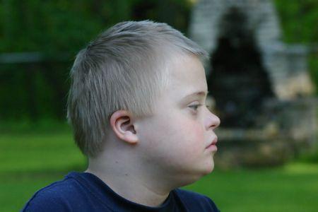 down syndrome: Down Syndrome Boy Profile Stock Photo