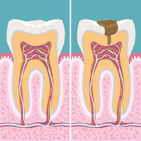 carious: Carious human tooth cross section Illustration