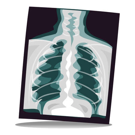 radiological: Vector Illustration of X-ray Film