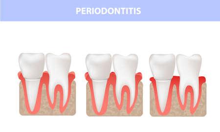 Periodontitis, gum disease, medical illustration