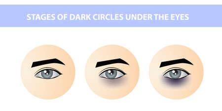 Dark circles under female eyes of different intensities, vector Illusztráció