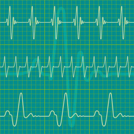 ekg: A set of diagrams as a seamless pattern, but each object is fully editable and is located on a separate layer Illustration