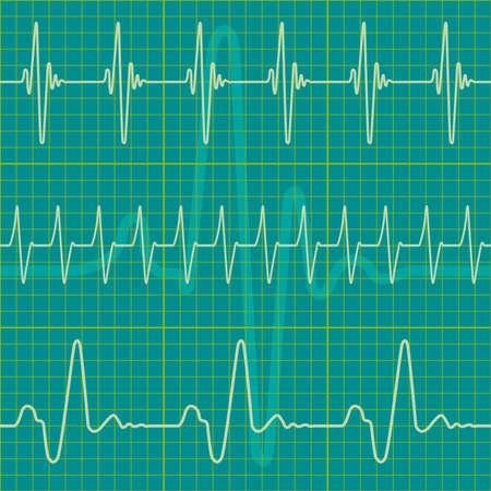 hjärtslag: En uppsättning diagram som en sömlös mönster, men varje objekt är helt redigerbara och ligger på ett separat lager Illustration