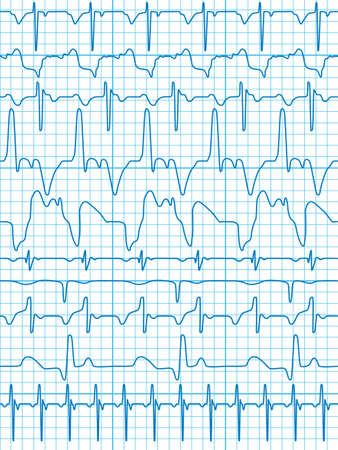 electrocardiograma: Un conjunto de 10 diagramas como un patrón sin fisuras, pero cada objeto es totalmente editable y se encuentra en una capa separada