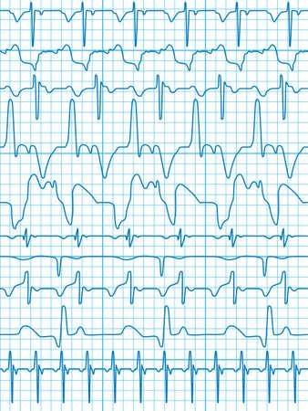 elettrocardiogramma: Un insieme di 10 diagrammi come un modello senza soluzione di continuità, ma ogni oggetto è completamente modificabile e si trova su un livello separato