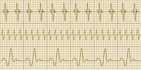 heart ekg trace: Seamless pattern of the electrocardiograms