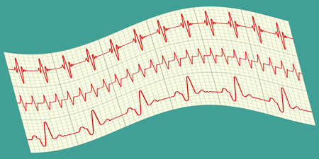 pulse trace: Illustration of the electrocardiograms icon