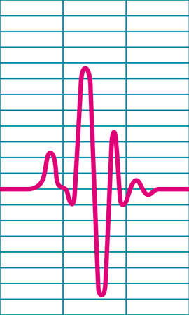 pulse trace: Illustration of the cardiogram icon