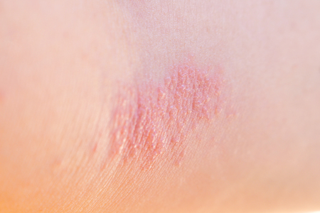 Woman with rashes on her arm Stock Photo
