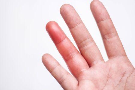 Frauenhandfläche rechts mit roter Schwellung von einem Bienenstich am Schwesterfinger, Entzündungsallergie auf der Haut