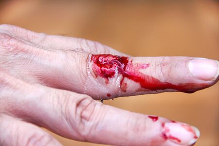Fresh flows red blood on middle finger hand , accident from electrical hair clipper cut