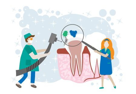 Caries vector concept for dentist landing page. Tiny dentists help toothache, treat pulpitis, to whiten enamel or recovery implant. National Dental Hygiene Month celebrated in October.