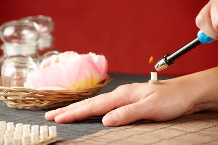 moxibustion: TCM Traditional Chinese Medicine. Hand lighting mini moxa stick, flower and natural herbs in glass jars in background.
