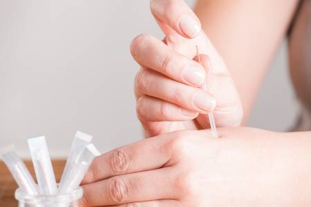 tonify: Hand applying acupuncture needle in a point called Hegu