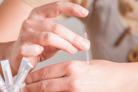 acupuntura china: Mano aplicando agujas de acupuntura en un punto llamado Hegu