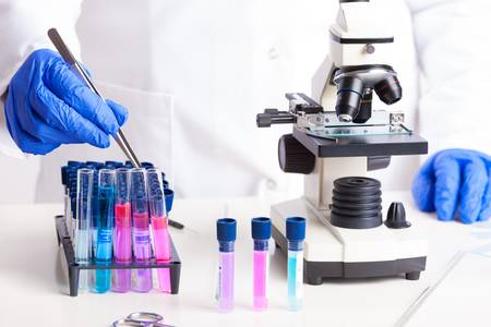 pinzas: Técnico de laboratorio se trabaja con equipos pinzas, microscopio, tubos de ensayo llenos de líquido color, frascos químicos
