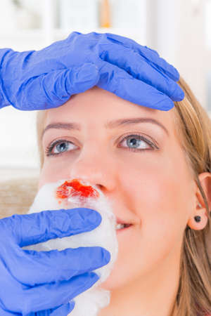 nose drops: Nurse helping young woman with bleeding nose Stock Photo
