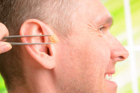eastern health treatment: Auriculotherapy, or auricular therapy, or ear acupuncture, or auriculoacupuncture is a form of alternative medicine based on the idea that the ear is a microsystem which reflects the entire body  Stock Photo