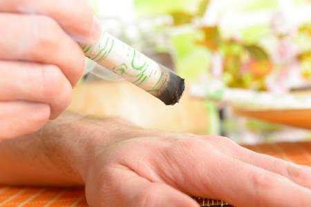 moxa: Professional moxa stick in hands of practitioner over patient body