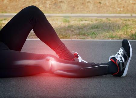 Infortunio al ginocchio Runner e il dolore con le ossa delle gambe visibile Archivio Fotografico - 45692819