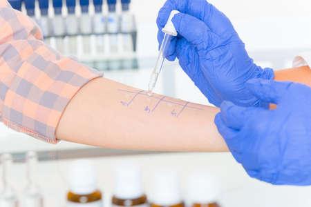 Medical doctor doing allergy tests in laboratory Standard-Bild