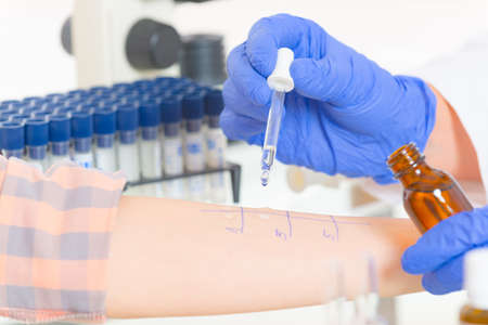 allergen: Medical doctor doing allergy tests in laboratory Stock Photo