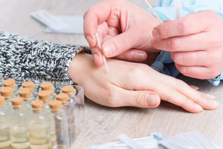 Acupuncture therapist applying acupuncture needle to her clients hand