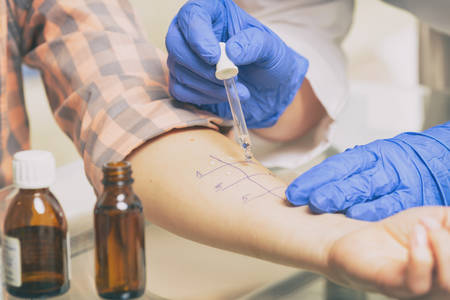 Arzt, der Allergietests im Labor durchführt