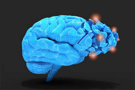 Brain inflammation or other process associated with tissues damage or thinking Conceptual 3d illustration helpful for in visualizing brain diseases. Zdjęcie Seryjne