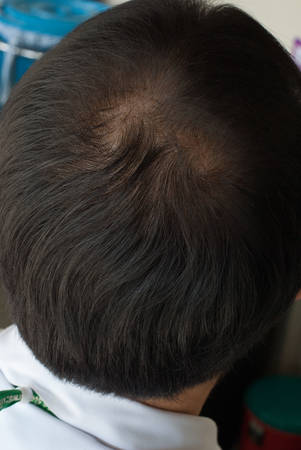 occiput: Human alopecia or hair loss - adult man bald head rear or back view Stock Photo