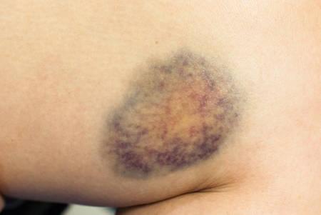 herida: Primer en un moret�n en la piel de la mujer herida en la pierna