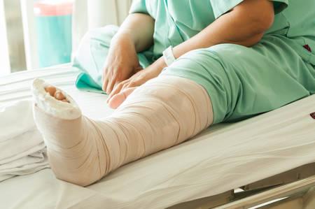 jambe cass�e: femme avec une jambe cass�e � l'h�pital Banque d'images