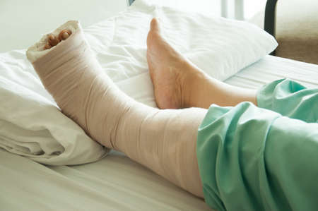 woman with broken leg in hospital photo