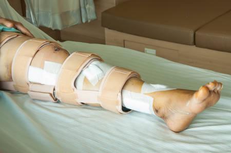jambe cass�e: femme portant une attelle de jambe, jambe cass�e