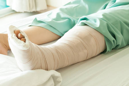 Broken Leg photo