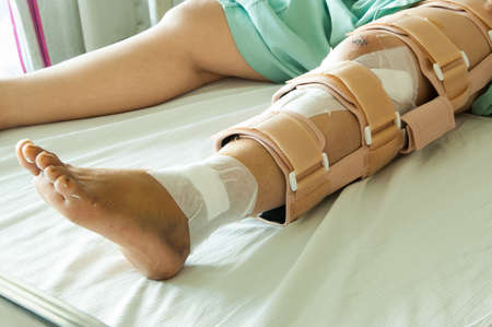 pierna rota: mujer que llevaba una llave de pierna, la pierna rota