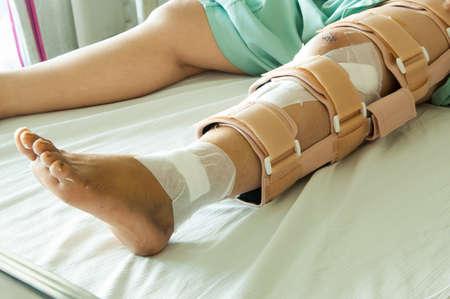 broken knee: woman wearing a leg brace, Broken leg Stock Photo