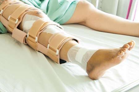 jambe cass�e: femme portant un appareil orthop�dique, Broken leg