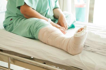 broken leg: Broken Leg