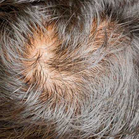 人間の脱毛症または毛損失問題とグリズリー 写真素材