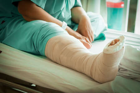 Injured woman with cast Broken Leg, bad day, insurance concept Stock Photo