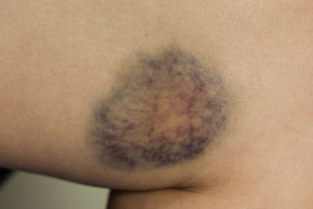 seeping: Closeup on a Bruise on wounded woman leg skin