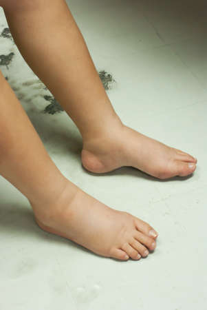 impaired: Gross edema of leg and foot