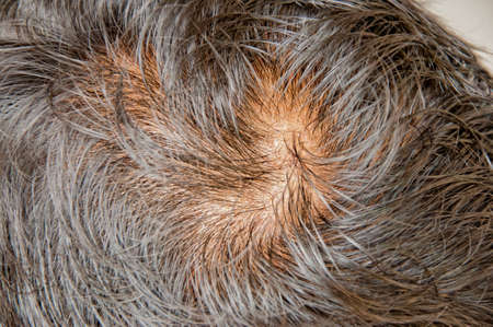 Human alopecia or hair loss problem and grizzly
