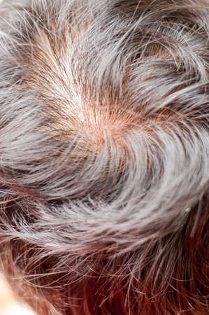 pelade: Human alopecia or hair loss problem and grizzly