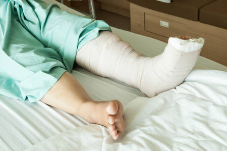 pierna rota: Broken Leg