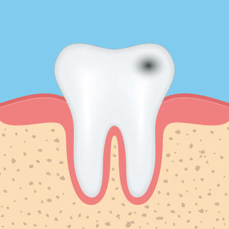 dentin: Human tooth with caries, Dental tooth health problem. Vector