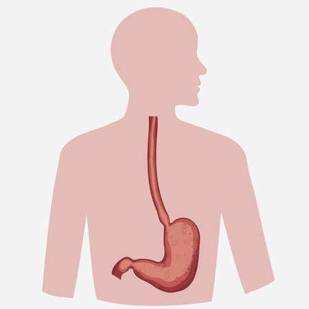 esofago: vector de estómago conjunto diagrama digestivo, imagen de la anatomía humana. Enfermedades respiratorias gráficos. Vector