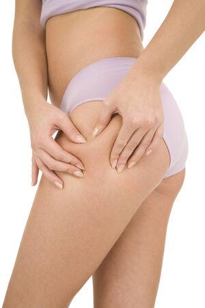 muslos: mujer controla la celulitis en los muslos