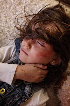 dysfunctional: Beaten little girl in a dysfunctional family
